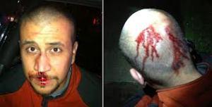 Éste es George Zimmerman, como ven, no tiene ninguna señal de ningún golpe, de ningún tipo